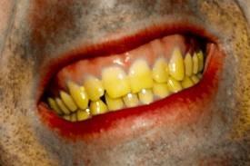 إصفرار الأسنان الناتج عن التدخين