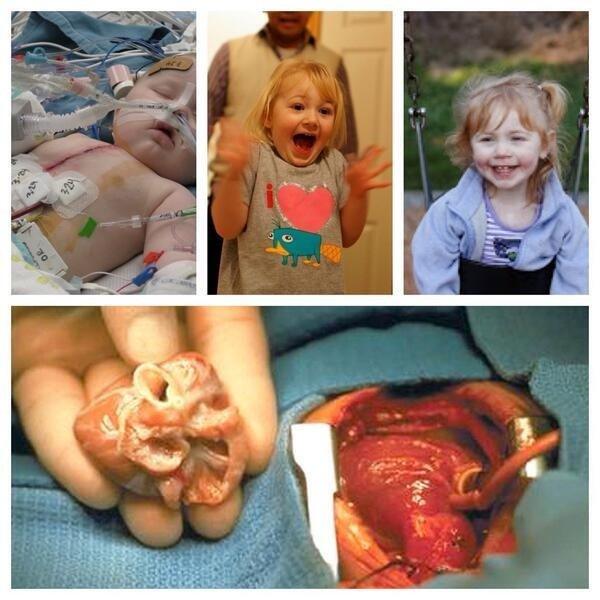 اصغر عملية قلب بالعالم