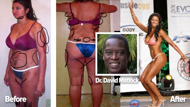 david matlock Creates his dream wife body using plastic surgery