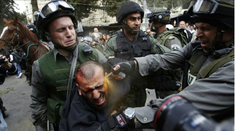 الجنود الصهاينة يرشون الفلفل على جرح لفلسطيني معتقل #فلسطين