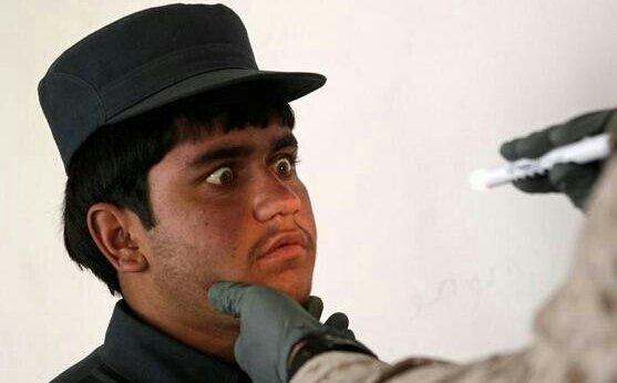 جندي أفغاني مصدوم من الفحص