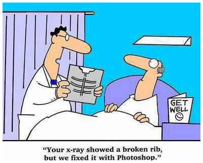 The latest technology in fixing broken ribs