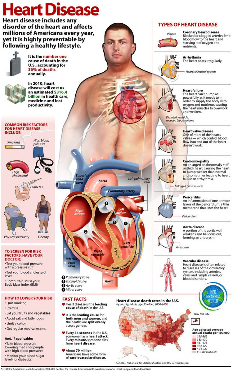 Heart disease #infographic