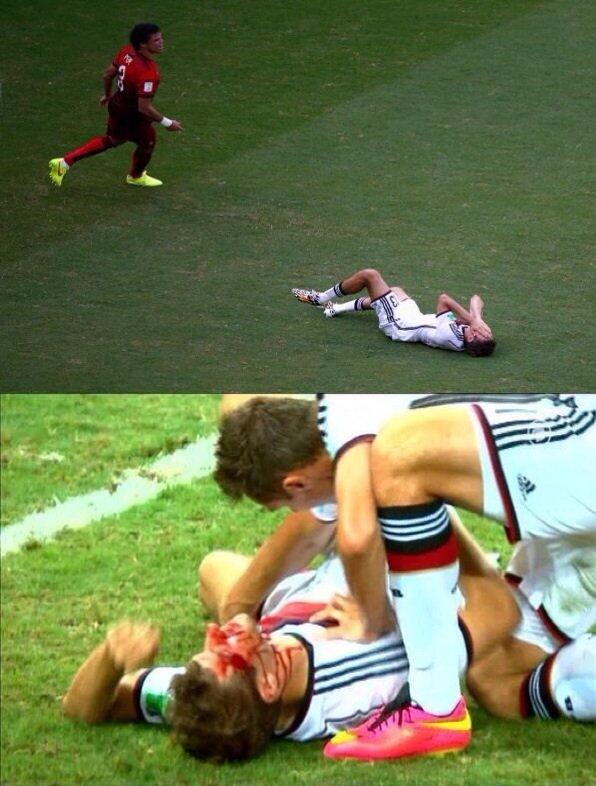 إصابة مولر اثناء المباراة مع غانا #كأس_العالم