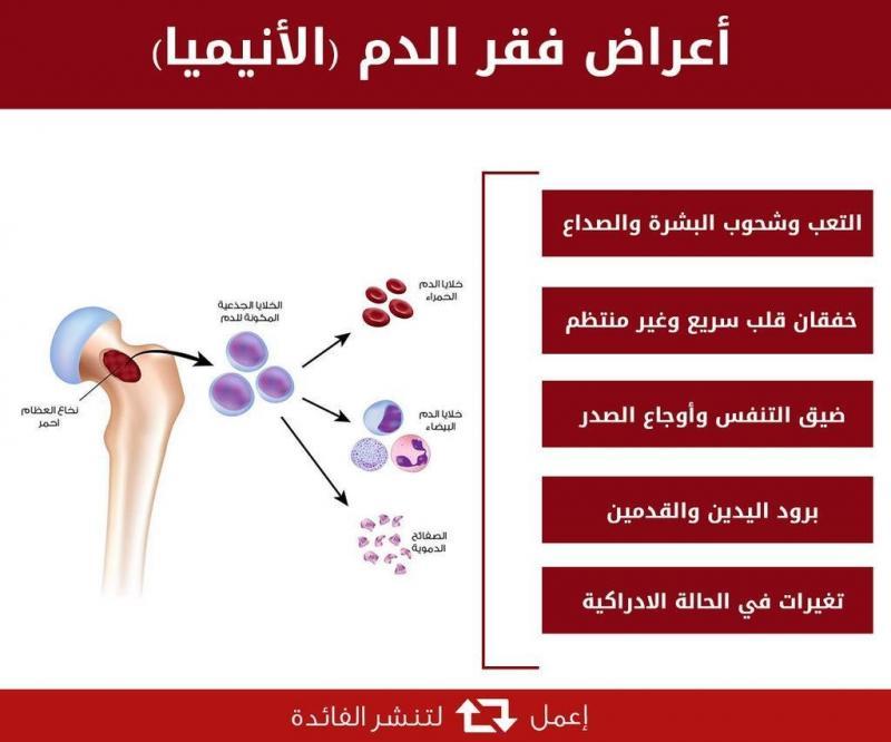 أعراض فقر الدم الانيميا #صحة #انفوجرافيك