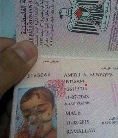 هكذا جوازات سفر اطفال غزة تجهيزا لنقلهم لتركيا #غزة_تحت_القصف