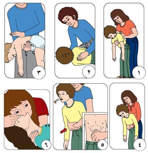 صورة هامة: الخطوات الصحيحة للتعامل مع حالات اختناق الطفل.. ساهم في نشرها وتوعية غيرك . #صحة