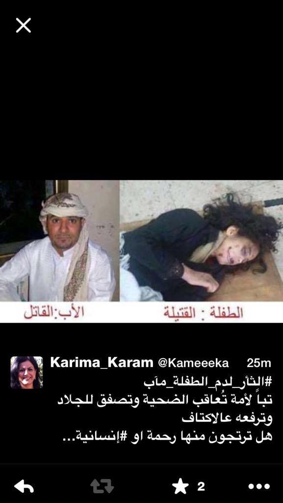 صورة مؤلمة جدا ومتداولة للطفلة بعد تعذيبها ومقتلها #الثأر_لدم_الطفلة_مآب