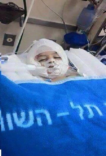 أحمد شقيق علي ما زال هو وأبواه في مرحلة الخطر #حرقوا_الرضيع