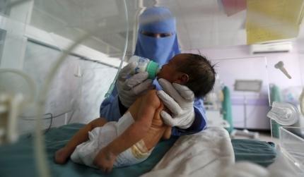 صور مروعة سوء التغذية يفتك بالصغار في مستشفى باليمن صورة رقم 3