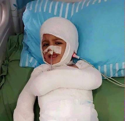 بقي أحمد يتيماً وحيداً يصارع الحياة بلا أم بلا أب بلا أخ #حرقوا_الرضيع