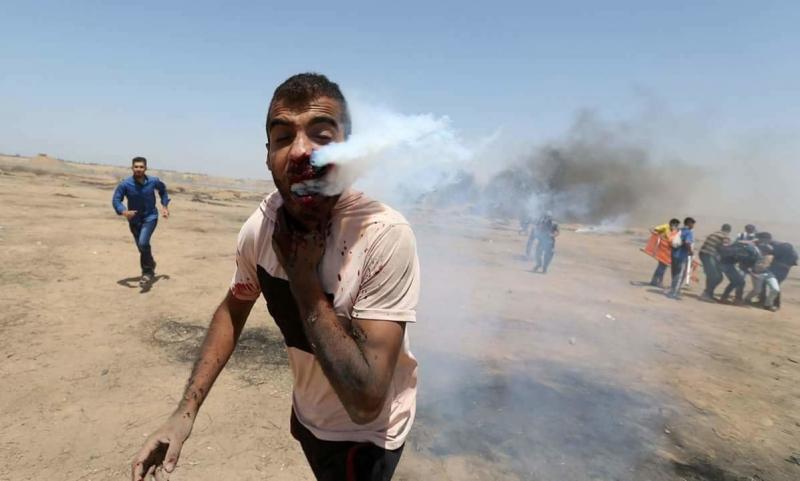 صور نشرتها US Today لشاب فلسطيني استنشق غاز القنابل الصهيونية #غزة #فلسطين -صورة ٣