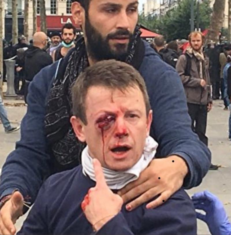 صور من مظاهرات #باريس #فرنسا - صورة ٤