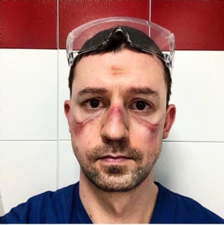 معاناة الأطباء في مواجهة فايروس #كورونا - 2